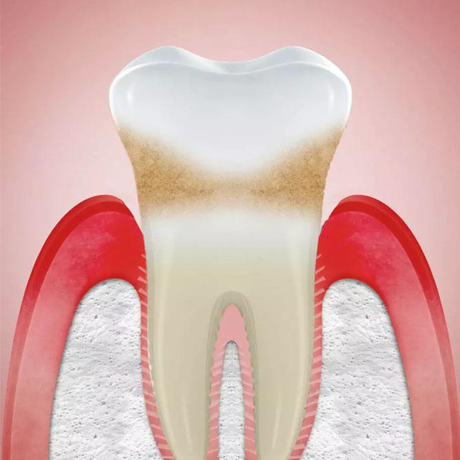 Banner image of Gum Recession Treatment Service