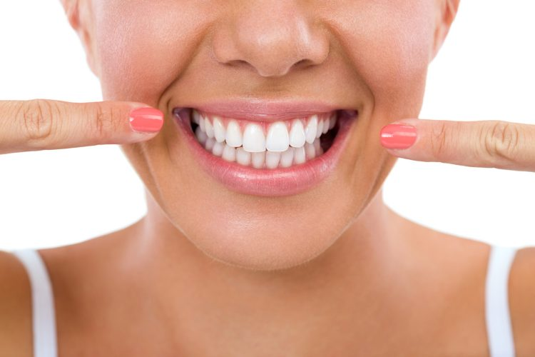 lady showing her Porcelain Veneers