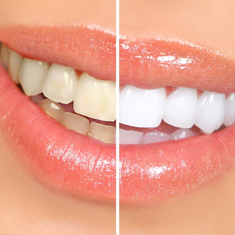 image of Teeth Whitening treatment