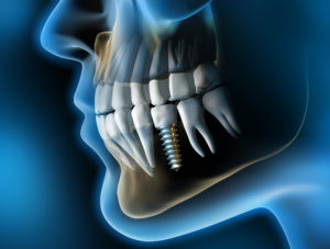 X-Ray image of mouth for dental implants
