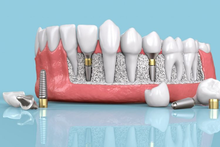 Dental Implant Components Explained