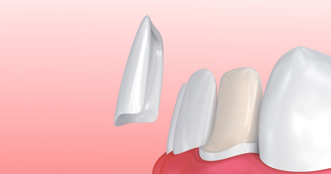 The Different Steps Involved In Applying Dental Veneers